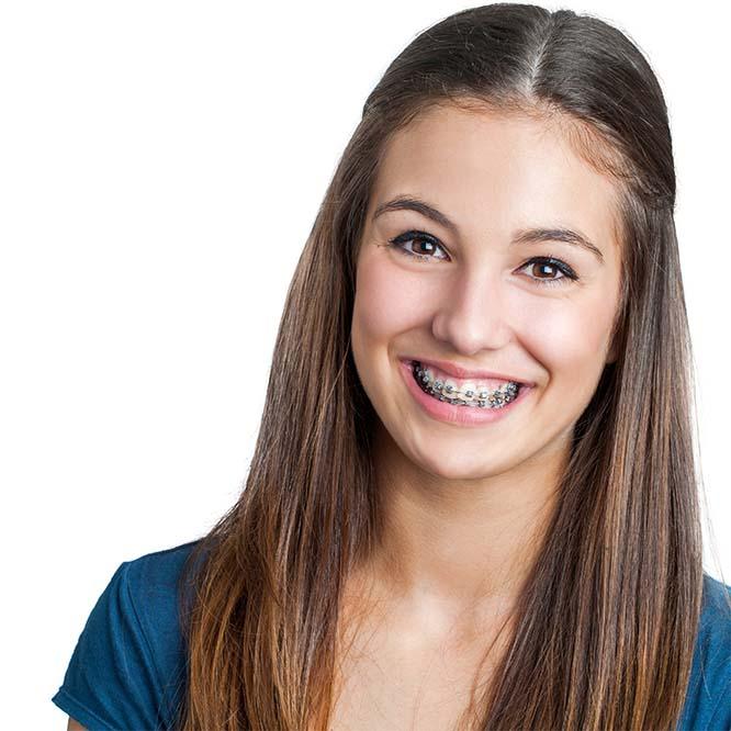 Promotie aparat dentar
